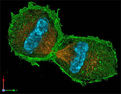 example of microtubules in the body