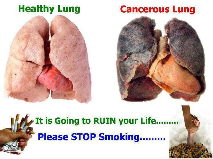 example of what smoking does to your lungs